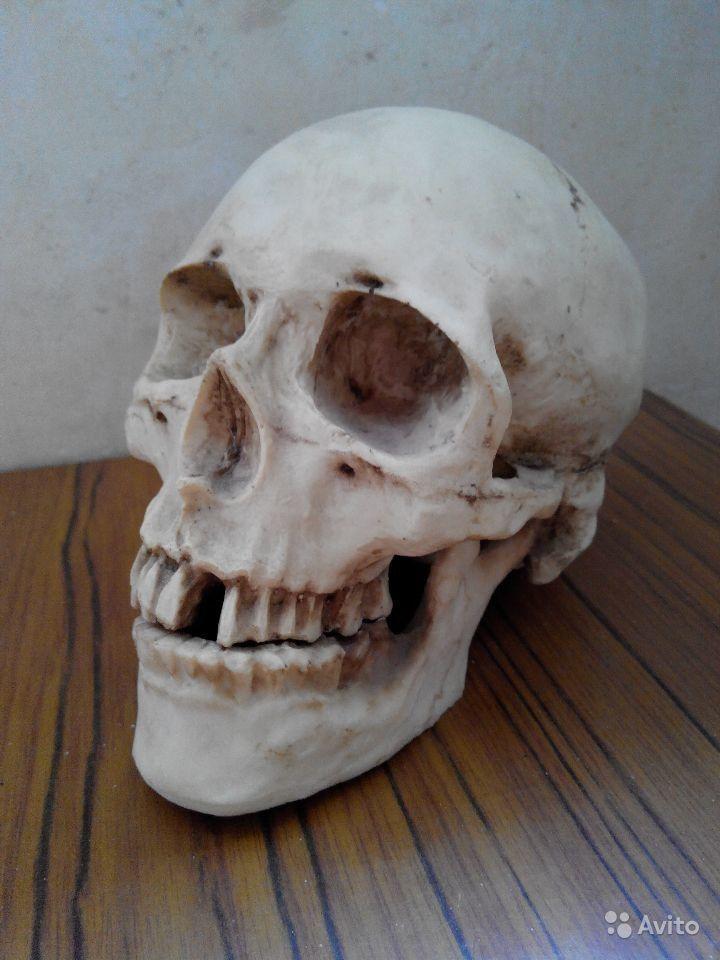Рязанец продает череп своей бывшей