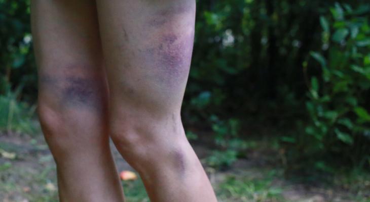 В Рязани 12-летнюю девочку полгода избивала собственная мать
