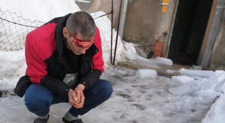 2 инцидента за день: прокуратура проведет проверку после падения ледяных глыб на людей
